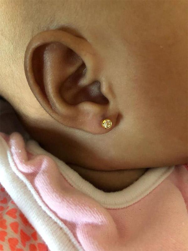 Ear Piercing My Family Clinic